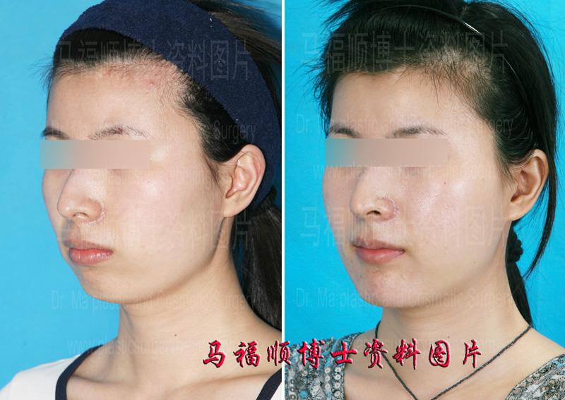 下巴颏后缩是指从侧面看下巴长的不够靠前,从正面看下巴颏的高度,也就是下唇到下巴尖的距离不够大。下巴后缩不仅仅对容貌有影响,还可能对呼吸功能有影响。有些小下颏患者睡觉时容易打呼噜可能就与下巴后缩有关。这是因为下巴后缩时,下巴骨与颈部的距离变近,也就是医学上所指的颏舌骨间距短小,咽和喉等呼吸通道所能利用的空间就变小,放松状态时比正常人更容易出现机械性呼吸道梗阻。对于这些人来说,积极地治疗下巴颏后缩对睡眠呼吸障碍有治疗作用。但这种治疗并不是简单地放个假体把下巴颏隆起来就能实现,而是做下巴骨前移整形术。 下巴骨前