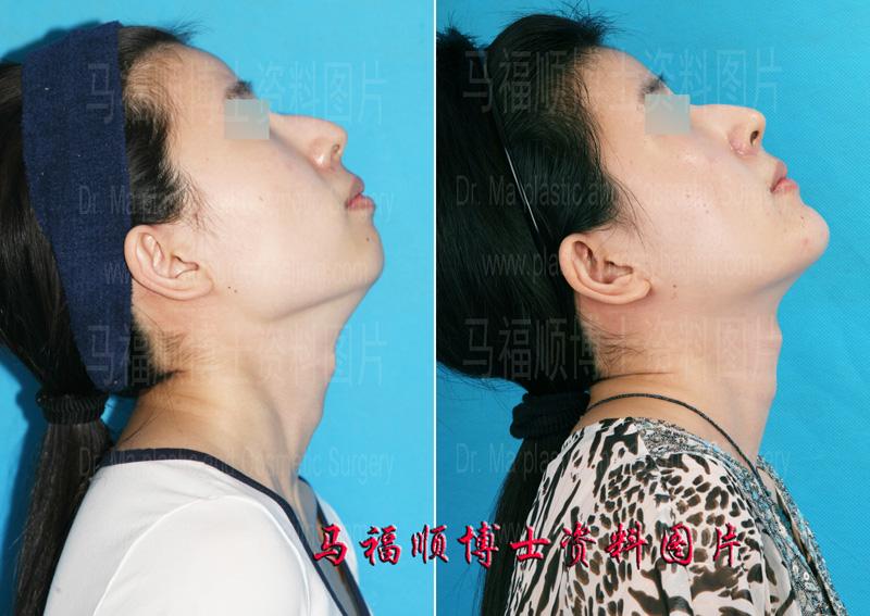 下巴的形状变化